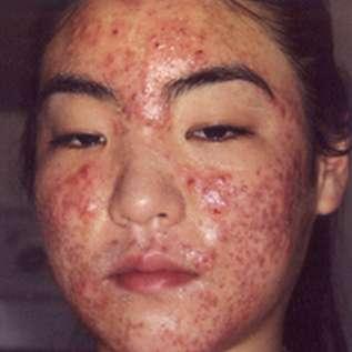 personne souffrant d'acné sur le visage